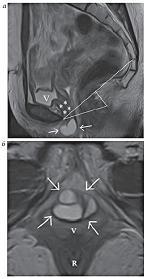 Рисунок 11:  МР-томограммы, Т2-ВИ, сагиттальная плоскость. <br>