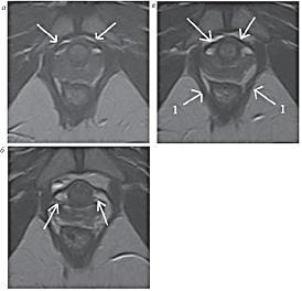 Рисунок 13:  МР-томограммы, Т2-ВИ, аксиальная плоскость.  <br>