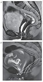 Рисунок 2:  МР-томограммы, Т2-ВИ, сагиттальная плоскость:  <br>
