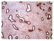 Рисунок 6: Экспрессия СЭФР при гиперпластическом процессе эндометрия (ГПЭ).