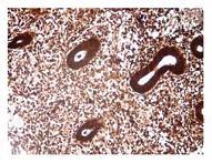 Рисунок 7: Экспрессия СЭФР при гиперпластическом процессе эндометрия (ГПЭ) в сочетании с хроническим эндометритом.