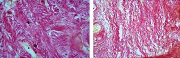 Рисунок 6: Различной степени выраженности очаговые изменения коллагеновых волокон в мягких тканях в виде полей склероза и утолщения коллагеновых волокон и пучков. Окраска пикрофуксином по ван Гизон. Увел. ×400.